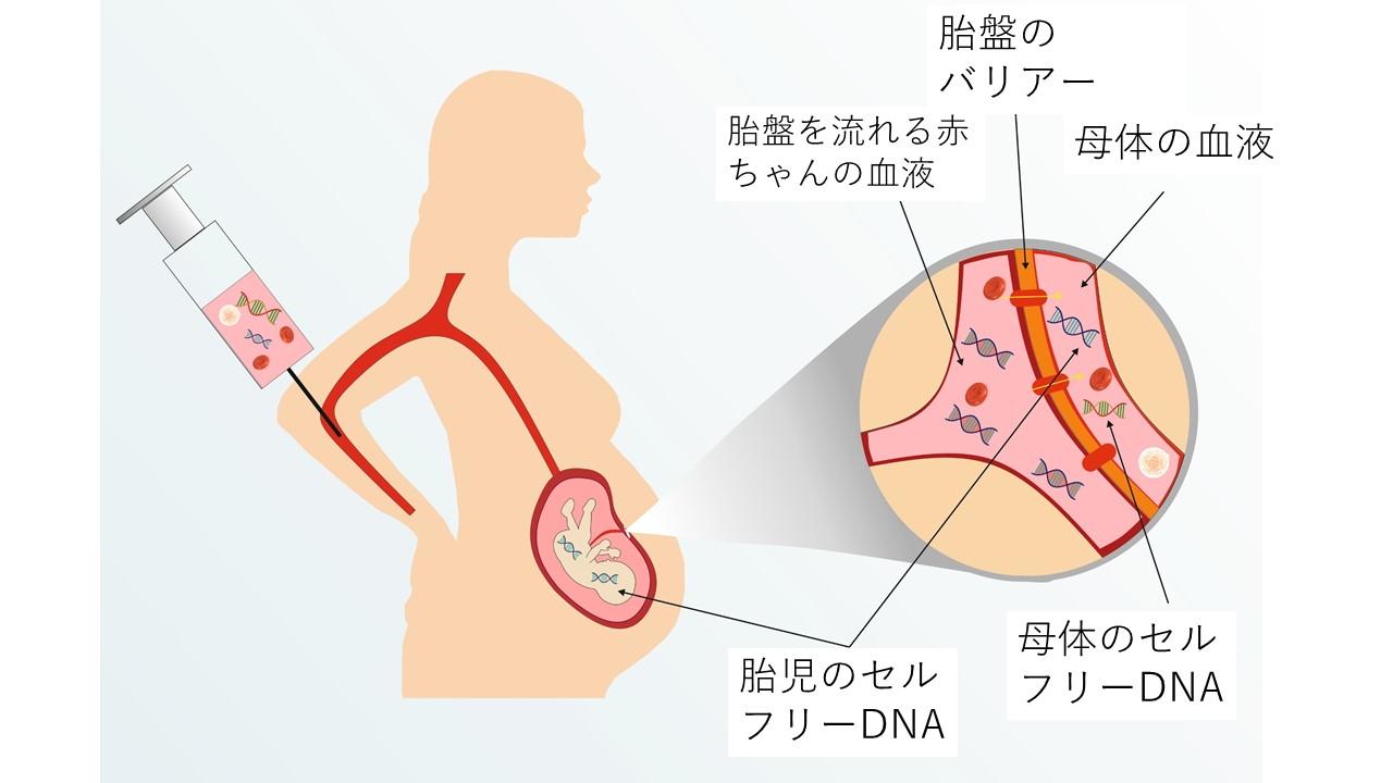 NIPT(新型出生前診断)
