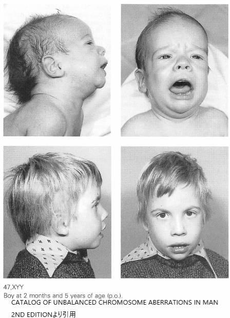 XYY症候群の患児