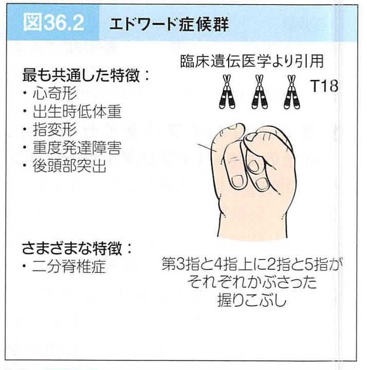 エドワーズ症候群の特徴